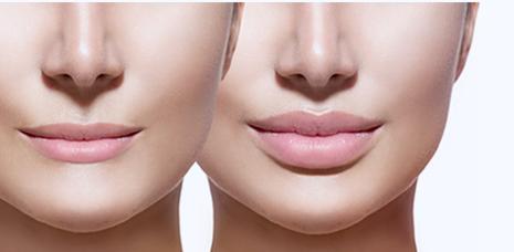 Медицинский центр «ПРИЗМА» оказывает услуги коррекции формы губ